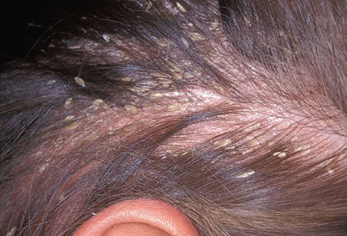 Understanding The Symptoms Of Skin Amp Scalp Eczema Curly Chic